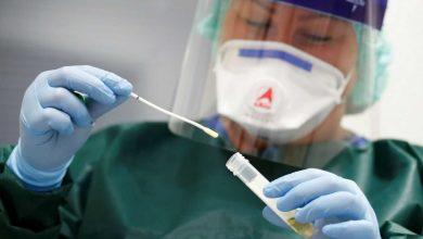 Photo of Otras 424 personas murieron y 12.625 fueron diagnosticadas con coronavirus en el país